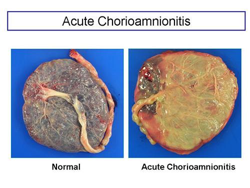 Acute Chorioamnionitis