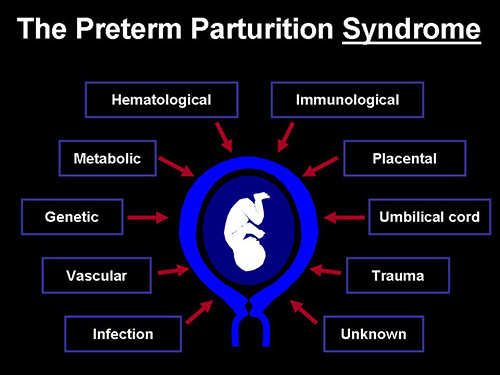Preterm Parturition Syndrom